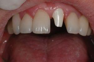 Implantaat met Zirconium opbouw geplaatst 2