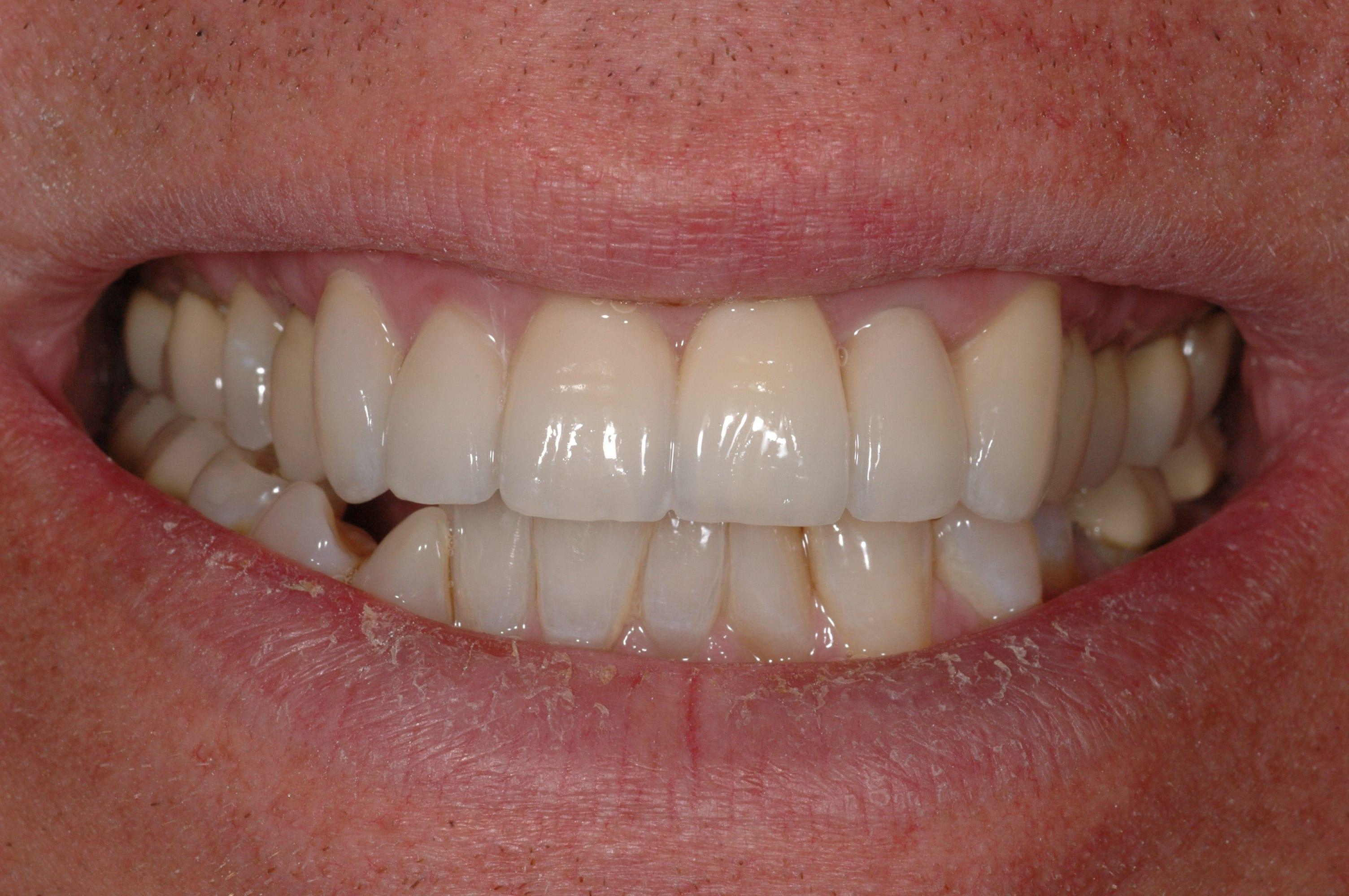 Een implantaat door een ervaren tandarts implantoloog for Vaste zoldertrap laten plaatsen